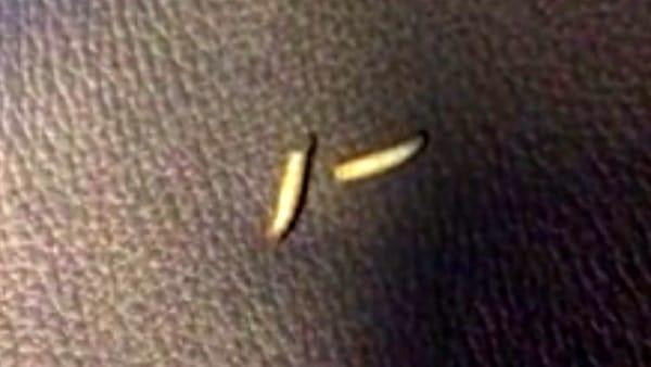Trenord, disgusto senza fine: ci sono persino le larve sui sedili